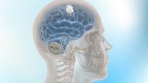 CorTec BrainInterchange Technologie