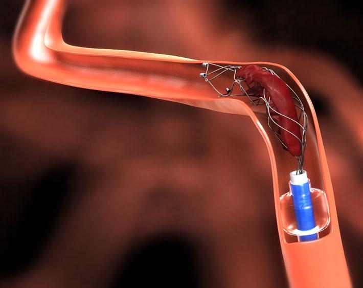 schlaganfalltherapie-stent
