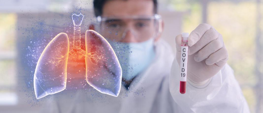 Testen – aber wie? COVID-19-Diagnostik: Werttreiber für die Pandemiebewältigung