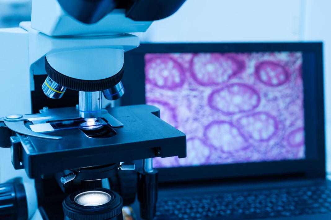 Roche und inveox: Kooperation soll Analyse von Gewebeproben erleichtern