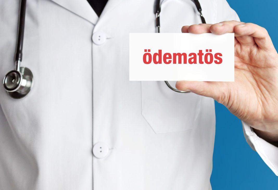 Lymphatica Medtech sammelt sieben stellige Summe in Serie A-Runde ein